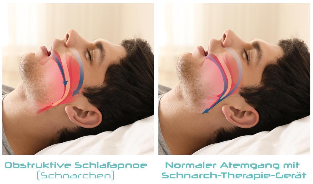 Atmungsvorgang beim Schnarchen im Vergleich zur Schnarchschiene