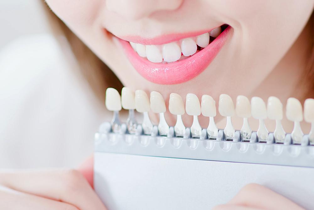 Zahnbleichung in der Ordination Zahnarzt23